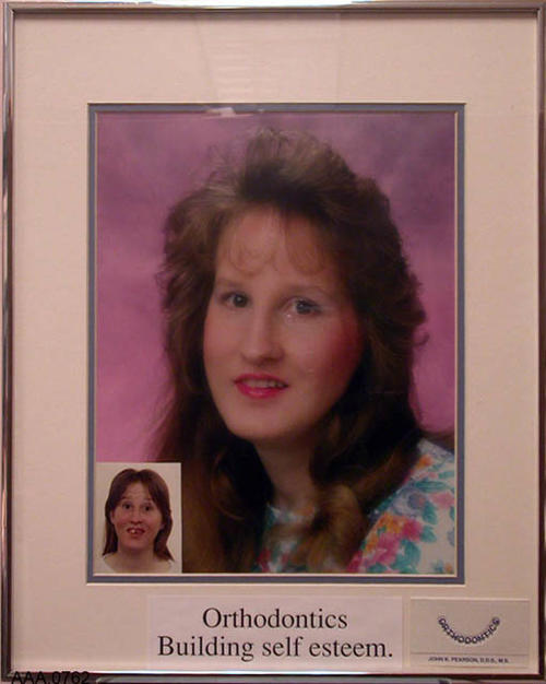 "This artifact is a color portrait of a young lady that has completed orthodontia.  In the lower left hand corner is a small 2 1/2"" x 3 1/2"" color picture showing the before condition.  The caption at the bottom of the picture reads: ""Orthodontics Building self esteem.  Next to this is a business card with the following text:  ""Orthodontics - John K. Pearson, D.D.S., M.S. This artifact measures 36 "" x 20""."